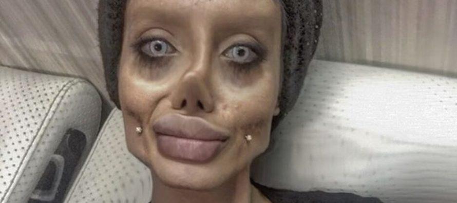 KATSO KUVAT! Iranilainen tyttö Sahar Tabar kävi 50 operaatiossa näyttääkseen Angelina Jolielta